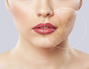 THE REAL STORY BEHIND ACCUTANE