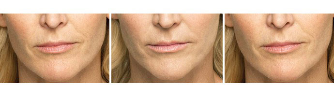 Woman's face, Before and After BELOTERO BALANCE Treatment, female, front view, patient 2