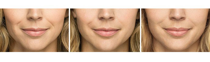 Woman's face, Before and After BELOTERO BALANCE Treatment, female, front view, patient 3