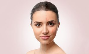 5 NEW WAYS TO TREAT NEW AND OLD ACNE SCARS - Woman's face before and after treatment