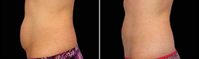 Woman's body, Before and After CoolSculpting Treatment, left side view, patient 1