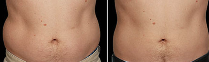 Male body, Before and After CoolSculpting Treatment, front view, patient 2