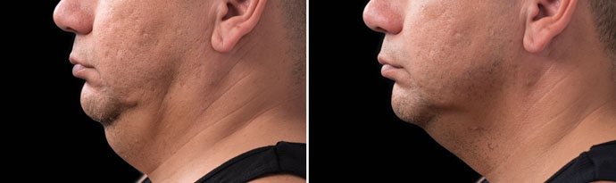 Male face, Before and After CoolSculpting Treatment, left side view, patient 10