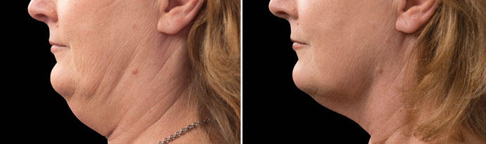 Woman's face, Before and After CoolSculpting Treatment, left side view, patient 11