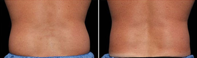 Male body, Before and After CoolSculpting Treatment, back view, patient 3