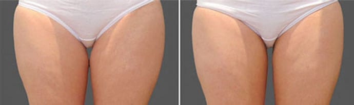 Woman's legs, Before and After CoolSculpting Treatment, front view, patient 5