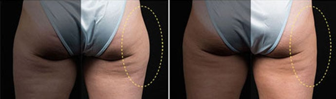 Woman's legs, Before and After CoolSculpting Treatment, back view, patient 6