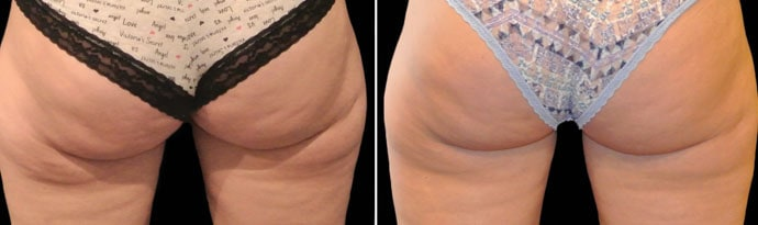 Woman's legs, Before and After CoolSculpting Treatment, back view, patient 7
