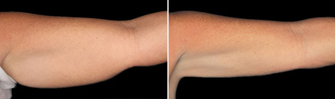 Woman's hands, Before and After CoolSculpting Treatment, front view, patient 8