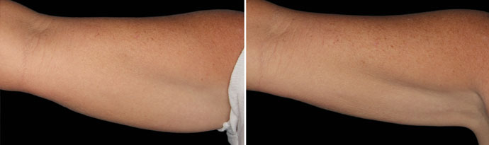 Woman's hands, Before and After CoolSculpting Treatment, front view, patient 9