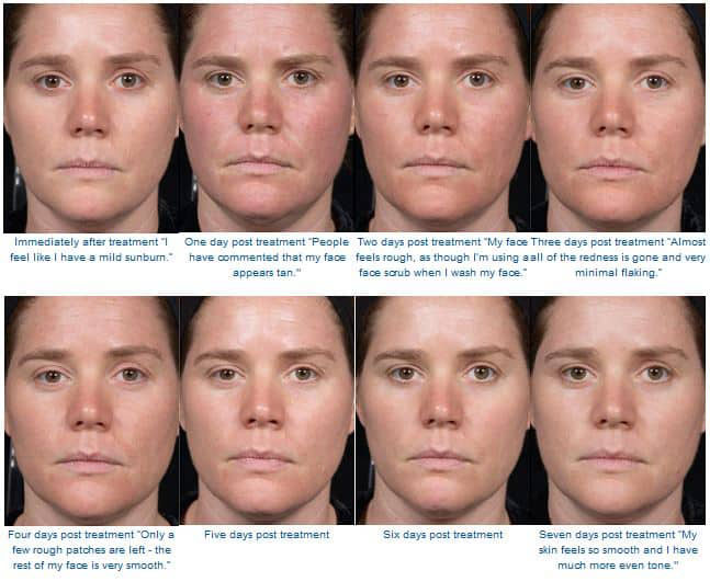 Woman's face, Before and After Clear + Brilliant laser treatment, female front view, patient 2