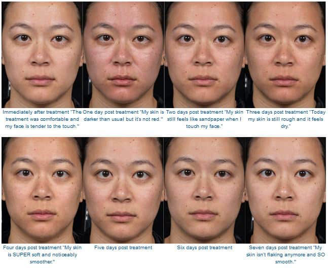 Woman's face, Before and After Clear + Brilliant laser treatment, female front view, patient 1