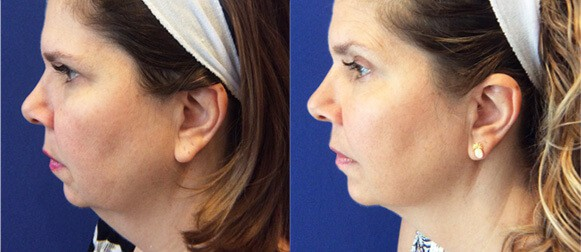 Woman's face, Before and After 4 Exilis sessions, left side view, female patient 1