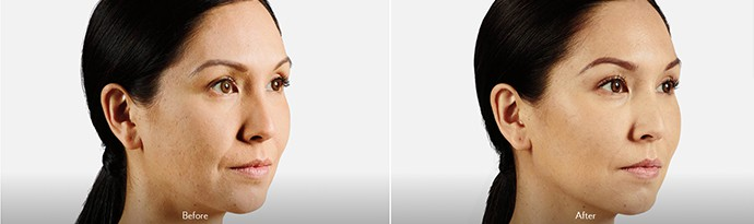 Woman's face, Before and After DERMAL FILLERS Treatment, oblique view, female patient 2