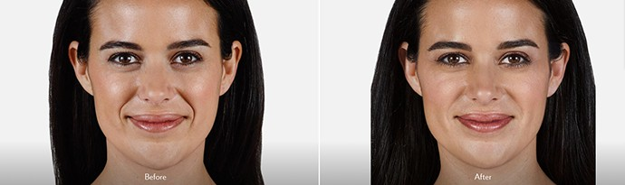 Woman's face, Before and After DERMAL FILLERS Treatment, front view, female patient 5