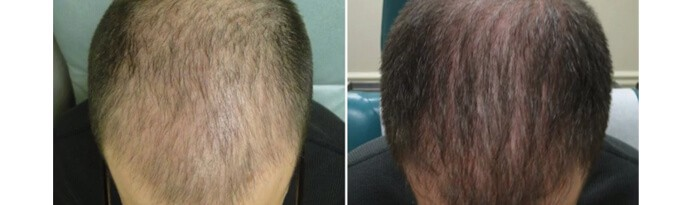 Before and After PRP TREATMENT FOR HAIR LOSS, front view, male head, patient 9