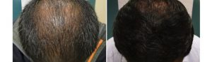 Before and After PRP TREATMENT FOR HAIR LOSS, front view, male head, patient 10