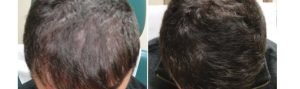 Before and After PRP TREATMENT FOR HAIR LOSS, front view, male head, patient 11