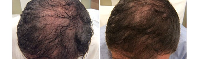 Before and After PRP TREATMENT FOR HAIR LOSS, male head, patient 2