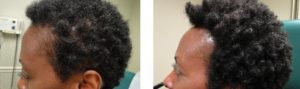 Before and After PRP TREATMENT FOR HAIR LOSS, left side view, male head, patient 3