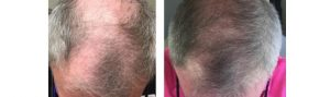 Before and After PRP TREATMENT FOR HAIR LOSS, front view, male head, patient 4
