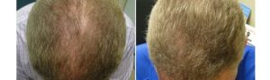 Before and After PRP TREATMENT FOR HAIR LOSS, front view, male head, patient 5
