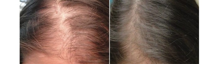 Before and After PRP TREATMENT FOR HAIR LOSS, female head, patient 6