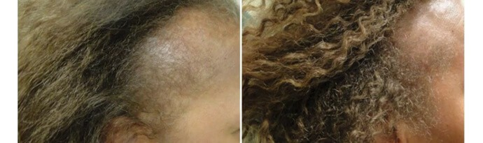 Before and After PRP TREATMENT FOR HAIR LOSS,right side view, female head, patient 7