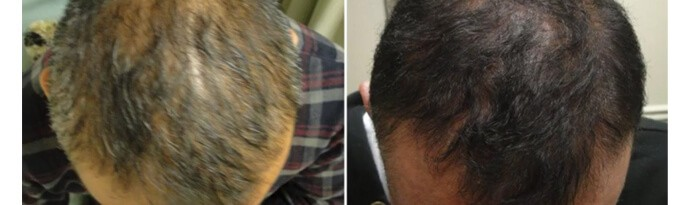 Before and After PRP TREATMENT FOR HAIR LOSS, front view, male head, patient 8