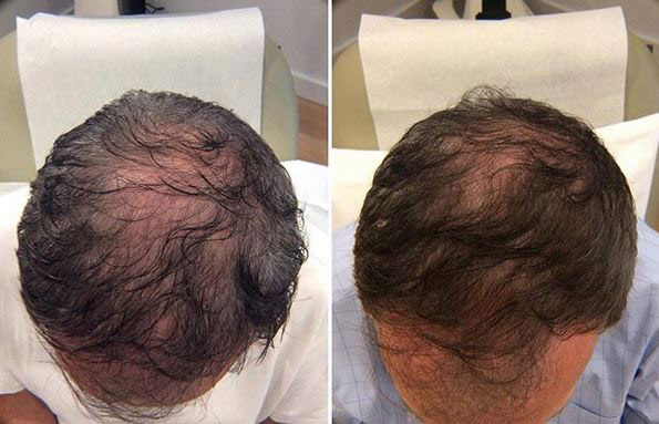 Before and After PRP TREATMENT FOR HAIR LOSS, front view, male head, patient 12