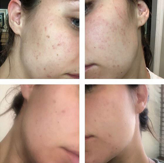 Watch Instagram Video: Jumpstart your acne treatment with silk peel dermalinfusion