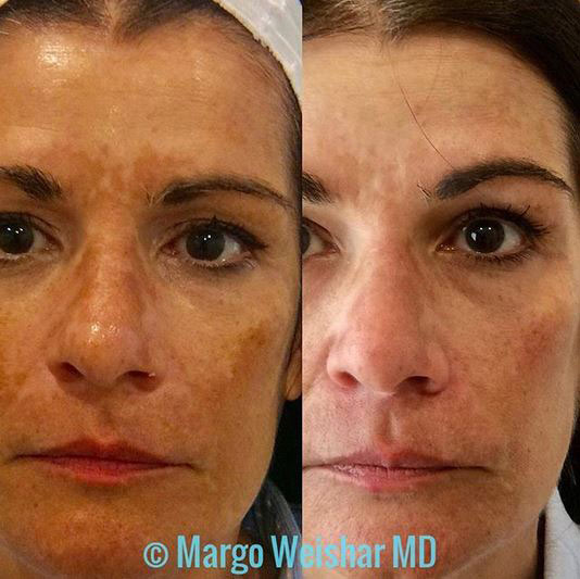 Woman's face, Before and After EXCEL V Treatment, female patient, front view