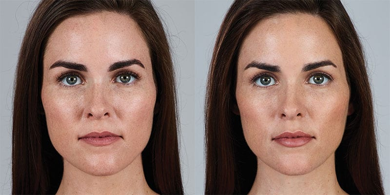 Woman's face, Before and After Juvederm Treatment, front view, female patient 1