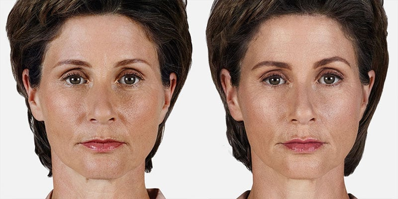 Woman's face, Before and After Juvederm Treatment, front view, female patient 2