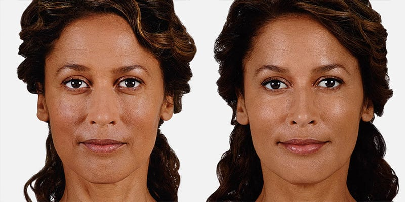 Woman's face, Before and After Juvederm Treatment, front view, female patient 3