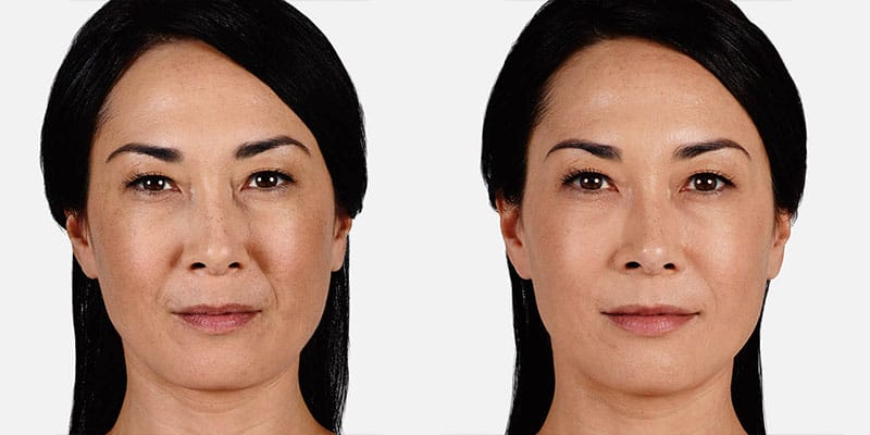 Woman's face, Before and After Juvederm Treatment, front view, female patient 4