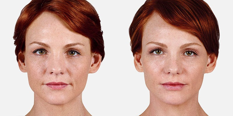 Woman's face, Before and After Juvederm Treatment, front view, female patient 5