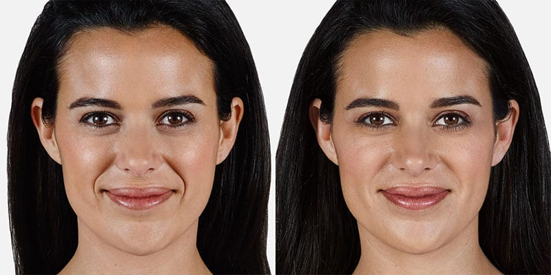 Woman's face, Before and After Juvederm Treatment, front view, female patient 7