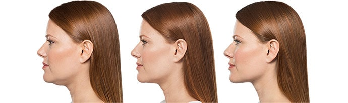 Woman's face, Before and After Kybella Treatment, left side view, female patient 1