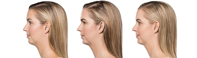 Woman's face, Before and After Kybella Treatment, left side view, female patient 10