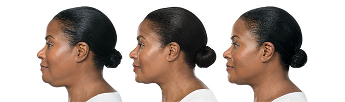 Woman's face, Before and After Kybella Treatment, left side view, female patient 2