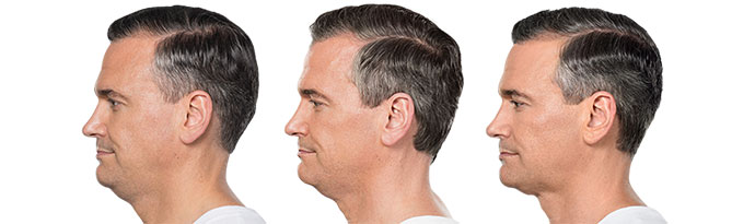 Male face, Before and After Kybella Treatment, left side view, male patient 3