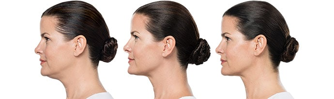 Woman's face, Before and After Kybella Treatment, left side view, female patient 4