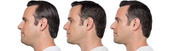 Male face, Before and After Kybella Treatment, left side view, male patient 6