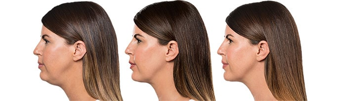 Woman's face, Before and After Kybella Treatment, left side view, female patient 7