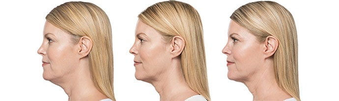 Woman's face, Before and After Kybella Treatment, left side view, female patient 8