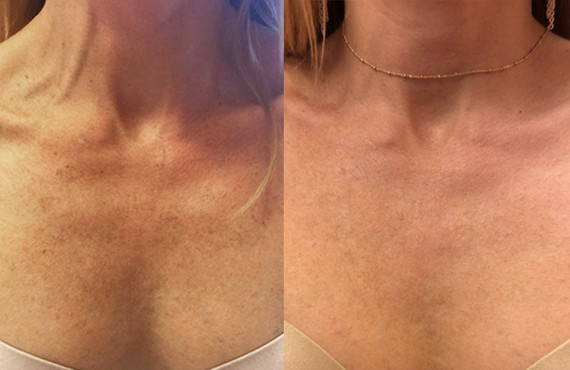 Woman's neck, Before and After Picogenesis Treatment, front view, female patient 2