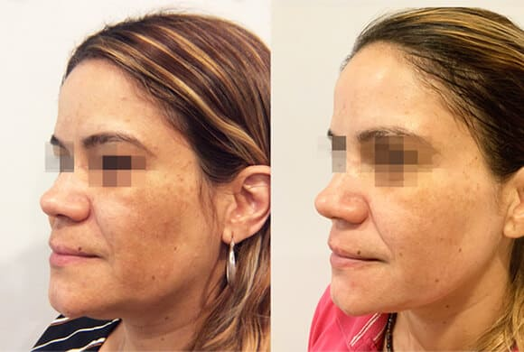 Woman's face, Before and After Picogenesis Treatment, left side oblique view, female patient 1