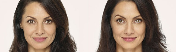 Woman's face, Before and After Radiesse Treatment, front view, female patient 1