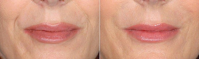 Woman's face, Before and After Restylane Treatment, lips, female patient 2